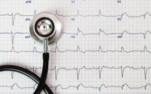 O que é eletrocardiograma e como é feito